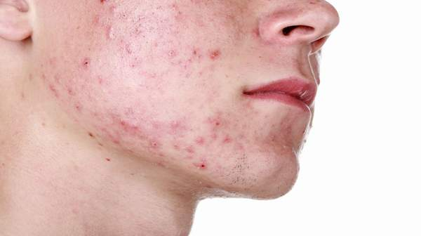 Acne: Various Types, Causes and Treatment Available