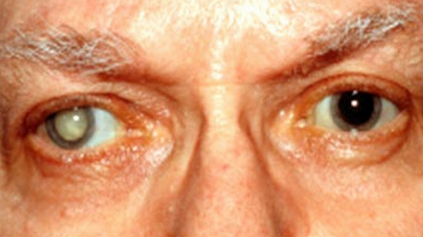 Picture of Cataracts -Symptoms, Causes, Tests