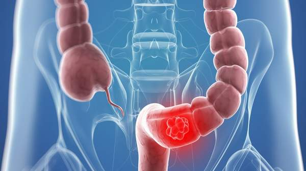 Picture of colon-cancer