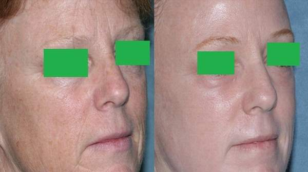Picture of Laser resurfacing