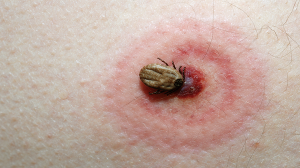 Insect bites and stings : Treament, Symptoms and Prevention