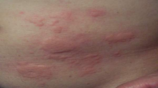 """Rash"" is a general term for a wide variety of skin conditions"