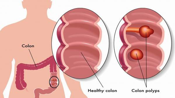 sigmoid colon: learn the facts & treatmentsdigest ground, Human body