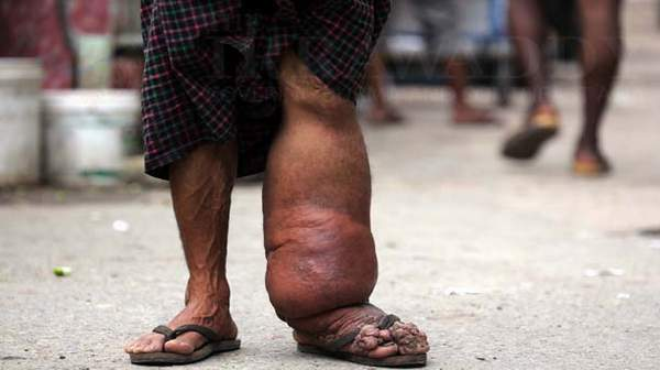Elephantiasis: Prevention Is Better Than Cure