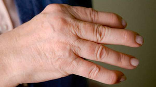 Psoariatic Arthritis is there a cure