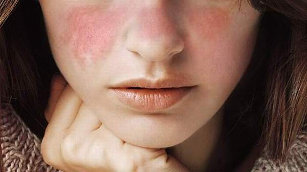 What is Systemic Lupus Erythematosus?