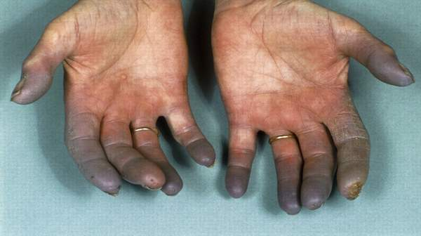 What is Buerger's Disease
