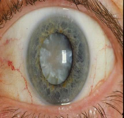 How Are Cataracts Treated