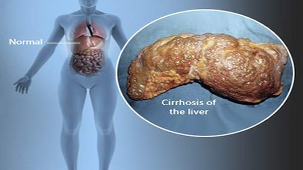 cirrhosis facts