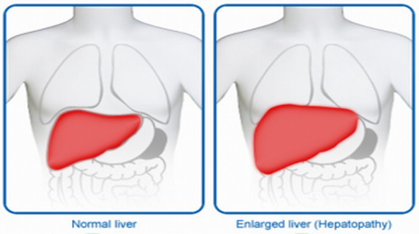 Enlarged-Liver-Hepatomegaly