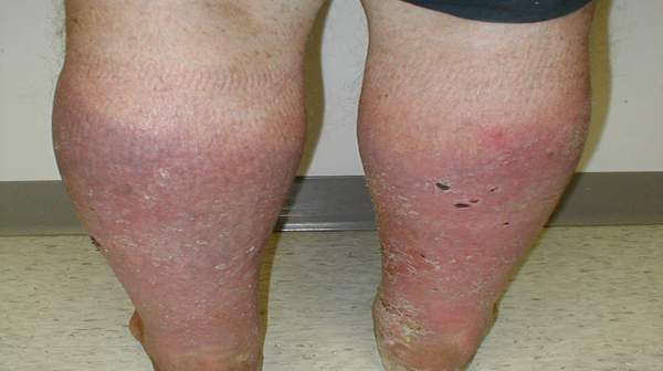 Who is at Risk of Stasis Dermatitis