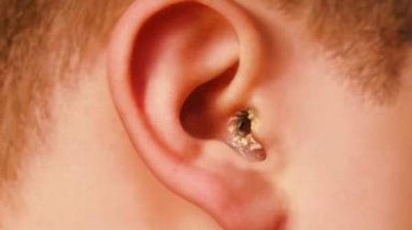 What are the symptoms of swimmer's ear?