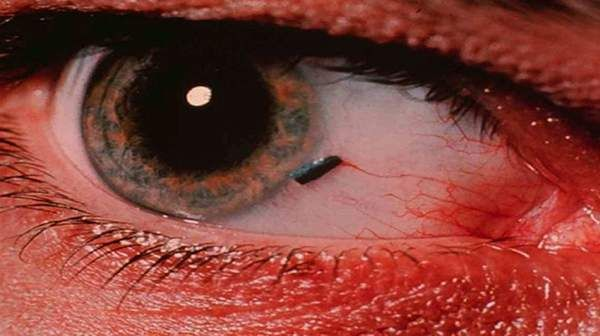 Picture of foreign object in your eye