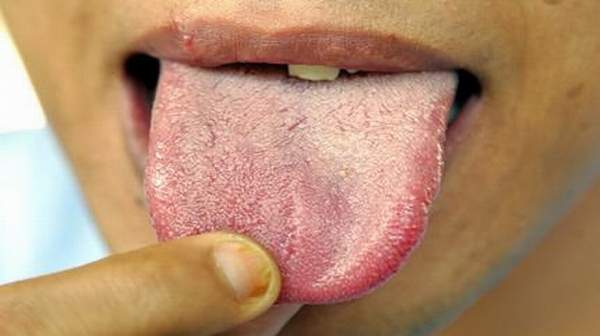 Picture of White tongue