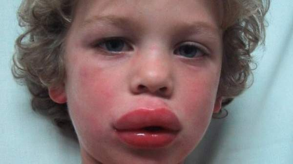 Picture of anaphylaxis