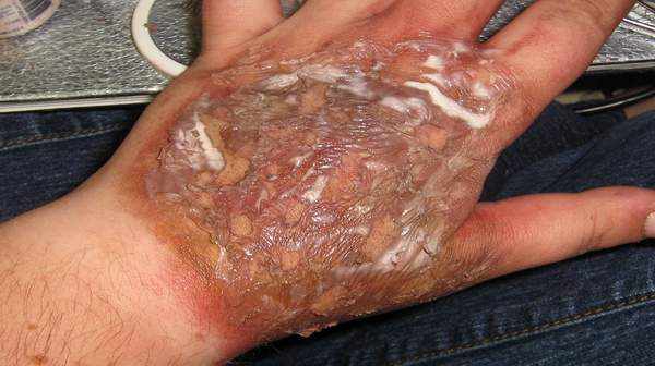 Picture of Chemical Burn
