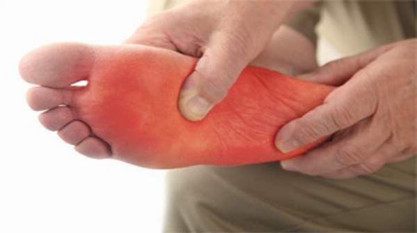 Picture of burning feet