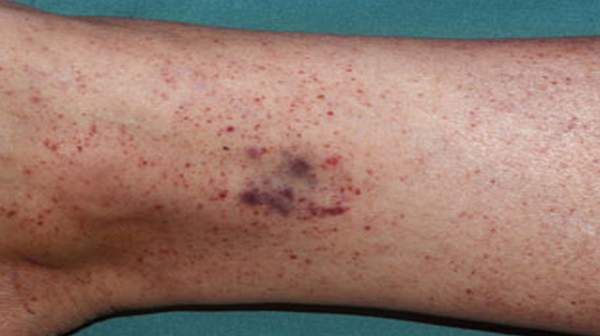 Photo of Petechiae