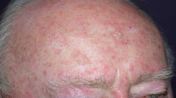 Actinic Keratosis: Facts about Sign of Symptoms and Treatment