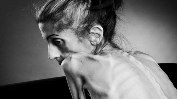 Anorexia Nervosa: Type, Signs, Symptoms, and Treatment