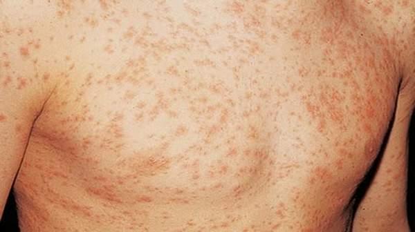 HIV and Aids Symptoms in Men