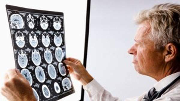Multiple sclerosis:  Symptoms and Causes