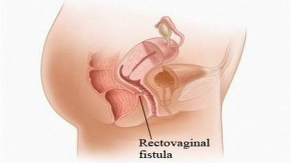 Fistula: happen in lots of elements of the physique