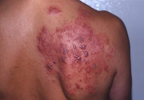 HIV Rash: infections and medicines