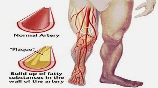 Blood Vessel Disease is The Leading Cause Of Amputations