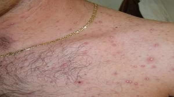 Folliculitis Symptoms