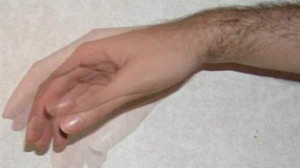 Essential Tremor Causes Symptoms And Diagnosis Health