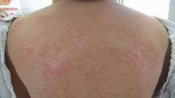 Acute HIV Infection Rash: Risk of Infecting Others