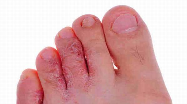Athlete's Foot: Fungal Infection and Foot Complications