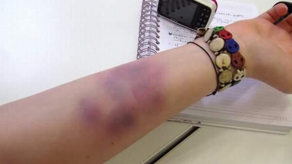 Bruise: Risk Factors, Symptoms & Home Treatment