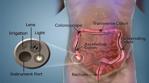 Colonoscopy Risk Procedure Preparation Amp Side Effects