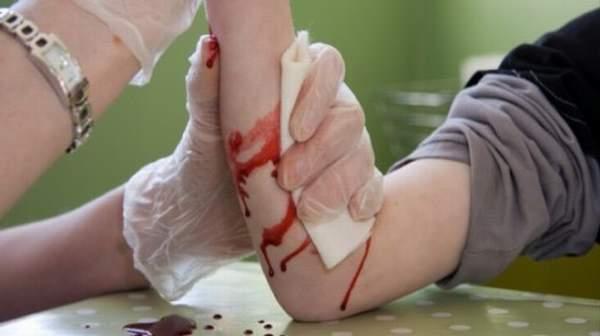 Severe Bleeding: Basic First Aid Treatment