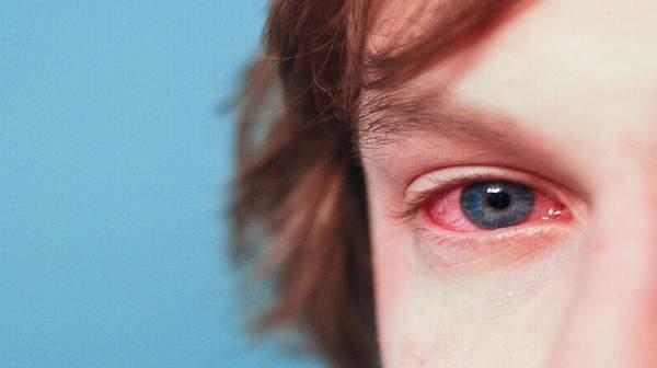 picture of allergic conjunctivitis symptoms